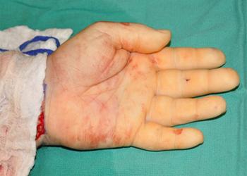 أول جراحة لزراعة يدين في العالم